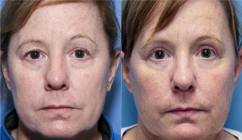 Eyelid Surgery Gallery - Patient 58490523 - Image 1