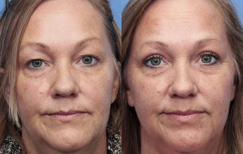 Eyelid Surgery Gallery - Patient 58490527 - Image 1