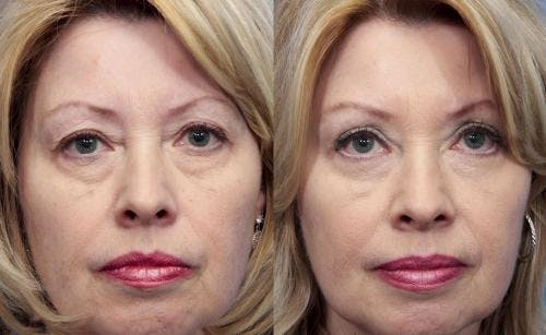 Eyelid Surgery Gallery - Patient 58490529 - Image 1