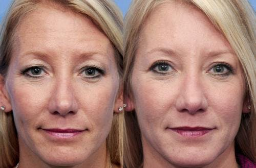 Eyelid Surgery Gallery - Patient 58490531 - Image 1