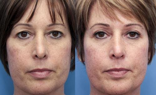 Eyelid Surgery Gallery - Patient 58490533 - Image 1