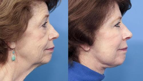 Fat Grafting Gallery - Patient 58490535 - Image 2
