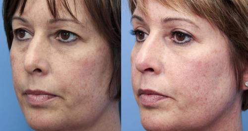 Eyelid Surgery Gallery - Patient 58490533 - Image 2