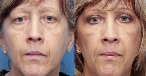 Eyelid Surgery Gallery - Patient 58490534 - Image 1