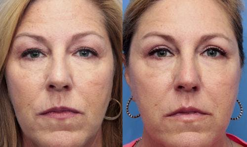 Eyelid Surgery Gallery - Patient 58490536 - Image 1