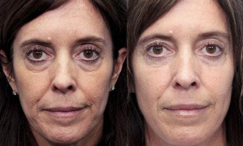 Eyelid Surgery Gallery - Patient 58490538 - Image 1