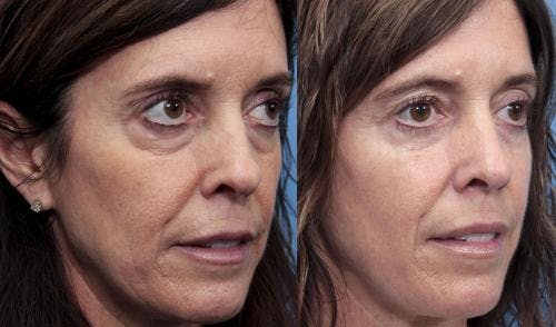Eyelid Surgery Gallery - Patient 58490538 - Image 2