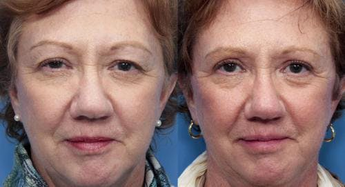 Eyelid Surgery Gallery - Patient 58490540 - Image 1