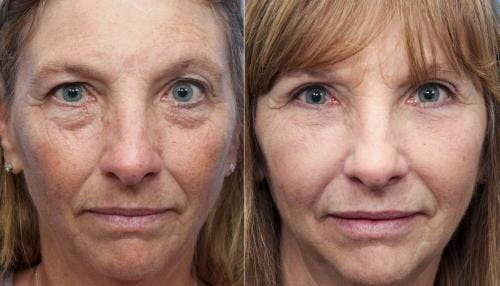 Eyelid Surgery Gallery - Patient 58490546 - Image 1