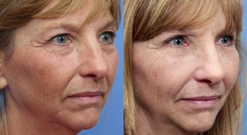 Eyelid Surgery Gallery - Patient 58490546 - Image 2