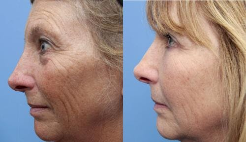 Eyelid Surgery Gallery - Patient 58490546 - Image 3