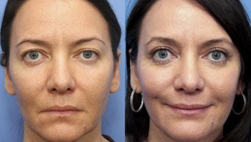 Eyelid Surgery Gallery - Patient 58490547 - Image 1