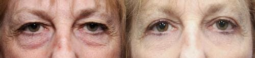 Eyelid Surgery Gallery - Patient 58490548 - Image 2