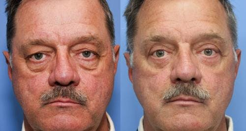 Eyelid Surgery Gallery - Patient 58490549 - Image 1