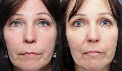 Eyelid Surgery Gallery - Patient 58490550 - Image 1