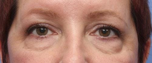 Eyelid Surgery Gallery - Patient 58490556 - Image 1