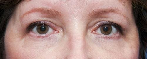 Eyelid Surgery Gallery - Patient 58490556 - Image 2
