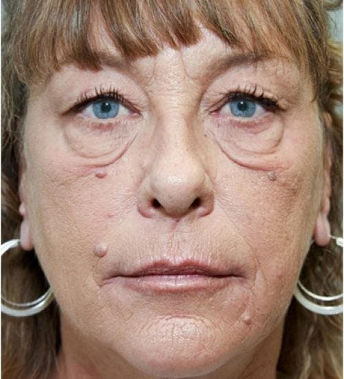 Eyelid Surgery Gallery - Patient 58490558 - Image 1