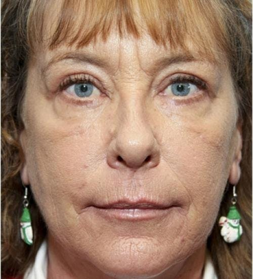 Eyelid Surgery Gallery - Patient 58490558 - Image 2