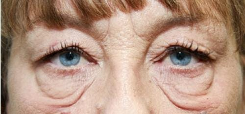 Eyelid Surgery Gallery - Patient 58490558 - Image 3