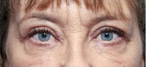 Eyelid Surgery Gallery - Patient 58490558 - Image 4
