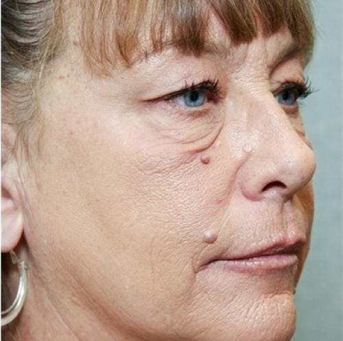 Eyelid Surgery Gallery - Patient 58490558 - Image 5