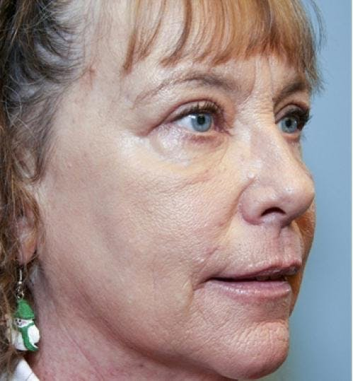 Eyelid Surgery Gallery - Patient 58490558 - Image 6