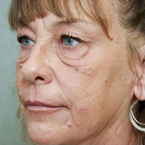 Eyelid Surgery Gallery - Patient 58490558 - Image 7