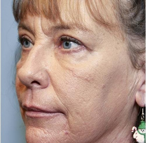 Eyelid Surgery Gallery - Patient 58490558 - Image 8