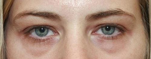 Eyelid Surgery Gallery - Patient 58490559 - Image 1