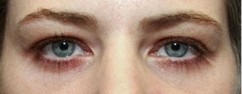 Eyelid Surgery Gallery - Patient 58490559 - Image 2
