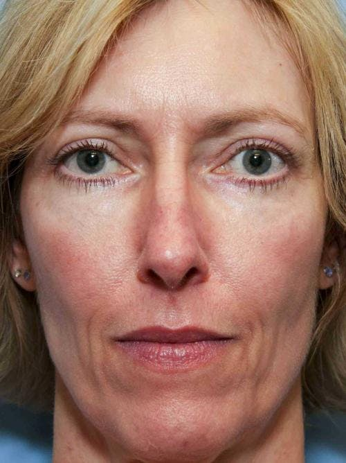 Eyelid Surgery Gallery - Patient 58490562 - Image 2