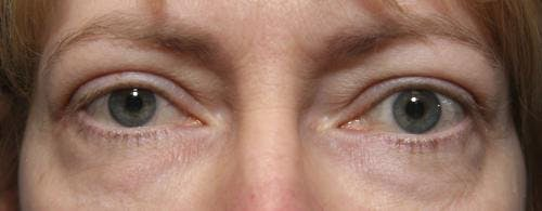 Eyelid Surgery Gallery - Patient 58490562 - Image 3