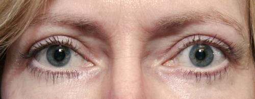 Eyelid Surgery Gallery - Patient 58490562 - Image 4