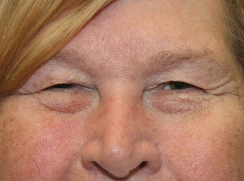 Eyelid Surgery Gallery - Patient 58490564 - Image 1