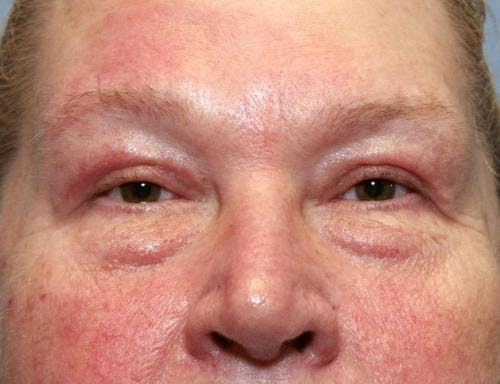 Eyelid Surgery Gallery - Patient 58490564 - Image 2