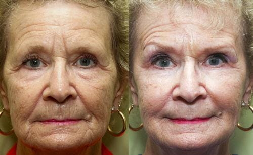 Facial Fillers Gallery - Patient 58490563 - Image 1