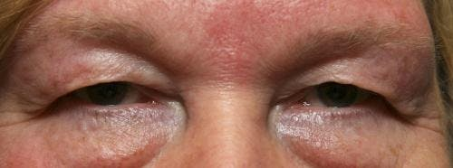 Eyelid Surgery Gallery - Patient 58490564 - Image 3