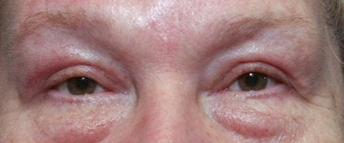 Eyelid Surgery Gallery - Patient 58490564 - Image 4