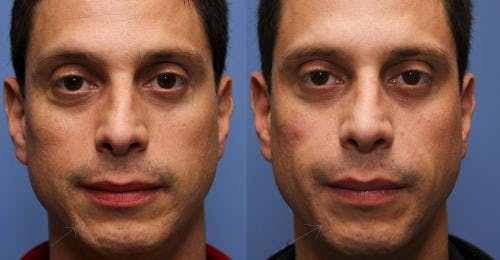 Facial Fillers Gallery - Patient 58490565 - Image 1