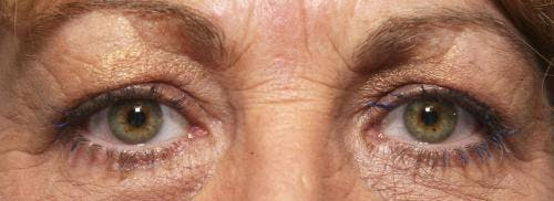 Eyelid Surgery Gallery - Patient 58490568 - Image 1