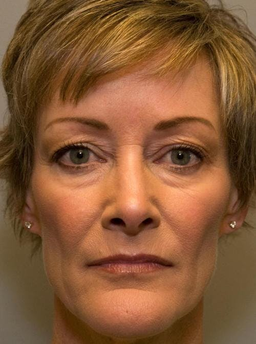 Facial Fillers Gallery - Patient 58490567 - Image 1