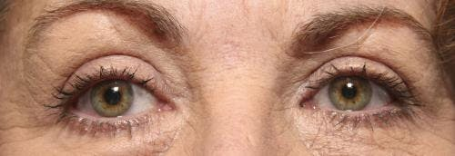 Eyelid Surgery Gallery - Patient 58490568 - Image 2