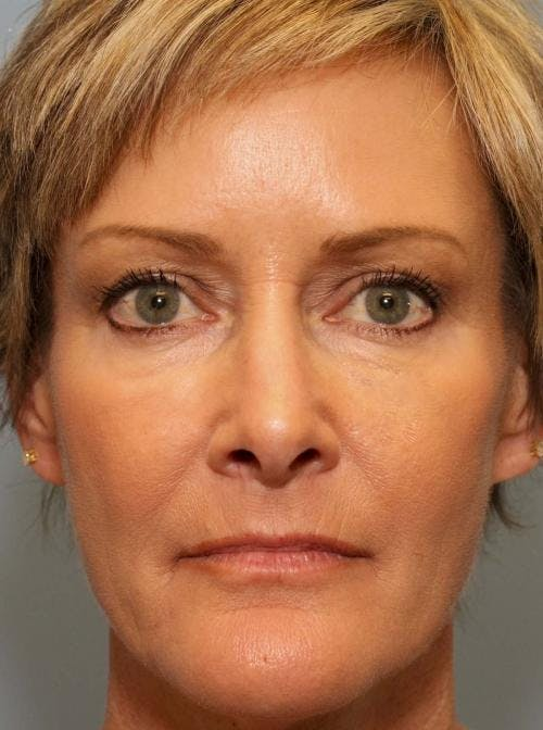 Facial Fillers Gallery - Patient 58490567 - Image 2
