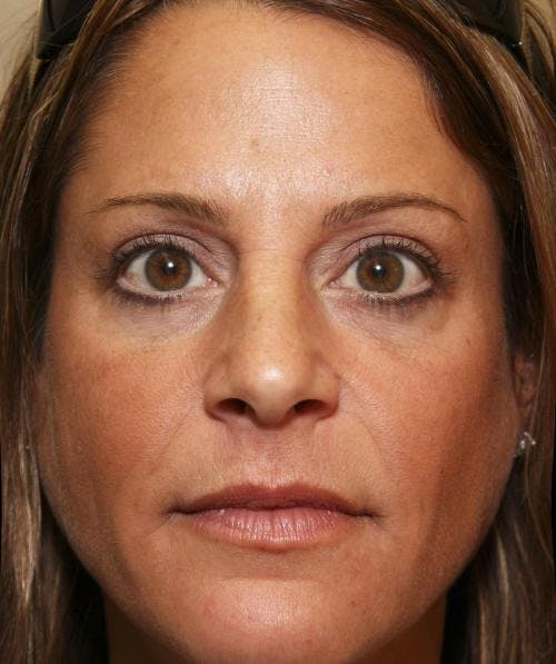 Eyelid Surgery Gallery - Patient 58490569 - Image 2