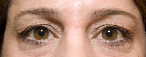 Eyelid Surgery Gallery - Patient 58490569 - Image 3