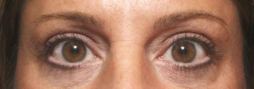 Eyelid Surgery Gallery - Patient 58490569 - Image 4