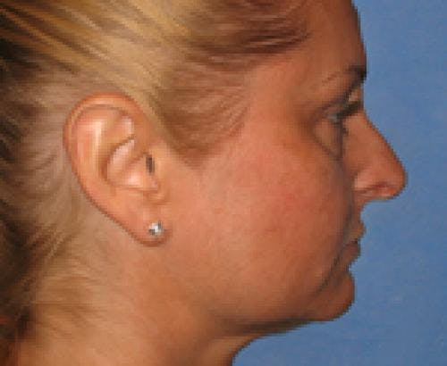 Eyelid Surgery Gallery - Patient 58490570 - Image 3