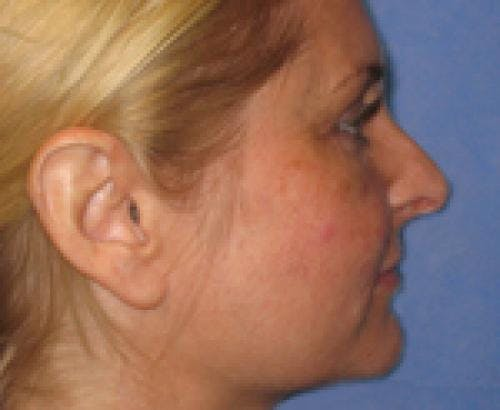 Eyelid Surgery Gallery - Patient 58490570 - Image 4