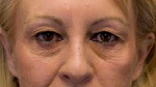 Eyelid Surgery Gallery - Patient 58490571 - Image 3